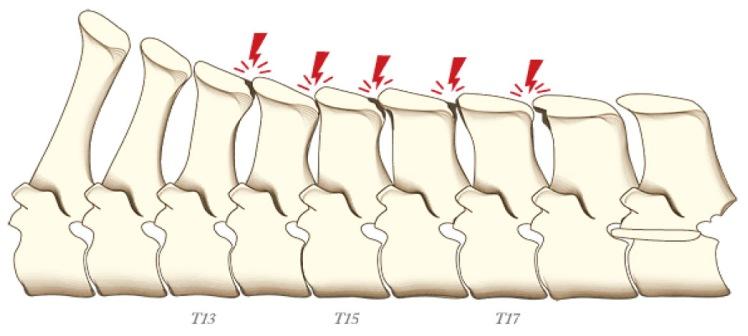 Nivel 1- Tacto de las apófisis espinosas.jpg