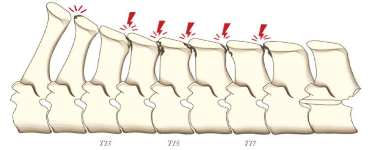 Nivel 2 – Tacto con una baja anulación de las apófisis.jpg