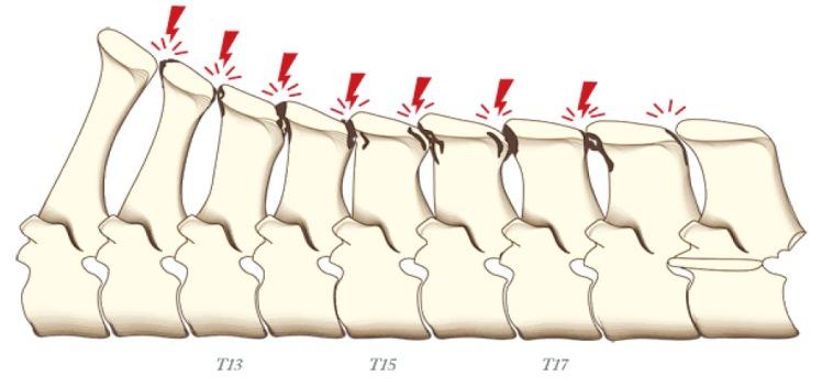 Nivel 3 - Anulación con reacciones periósticas.jpg